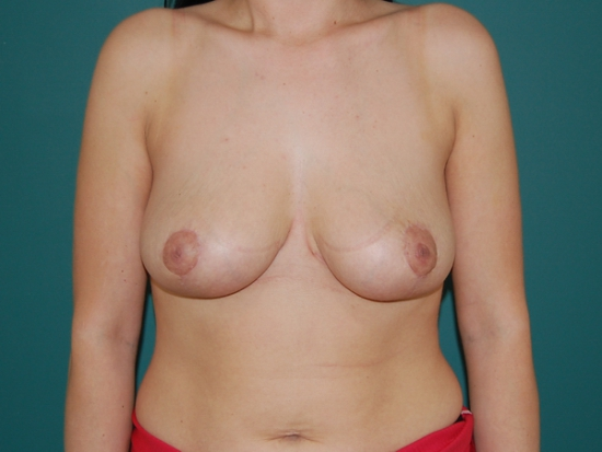 After (breast reduction)