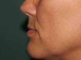 Lips augmentation with Permalip® implants - Plastinė chirurgija