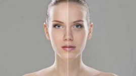 woman pre and post treatment