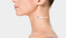 rein-technique-for-the-neck-side-view
